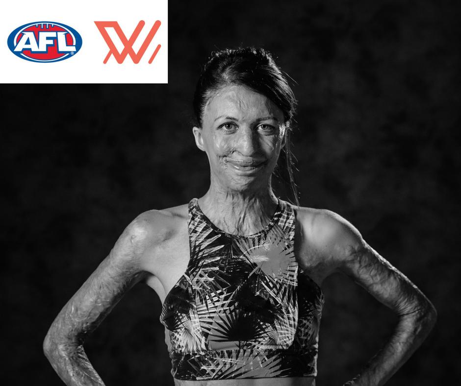 Turia Pitt AFL Campaign